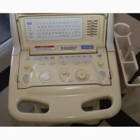 УЗИ/УЗД аппарат Toshiba Justvision400 (в комплектации)